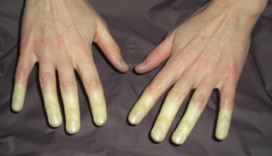 This is Raynaud's Phenomenon. Fun, huh?